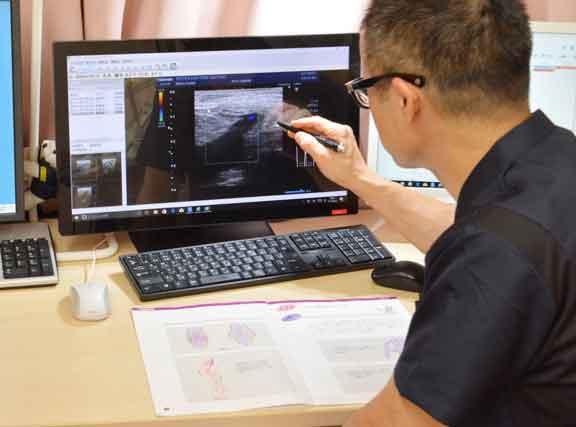 下肢静脈瘤の検査結果を画面で確認しながら患者様に最適な治療を説明する楽クリニック藤田院長。