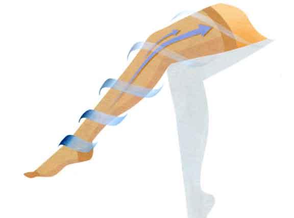 足のサイズや下肢静脈瘤の症状にあった圧迫圧の医療用弾性ストッキングを着用