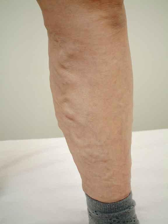 下肢静脈瘤の症状画像その1