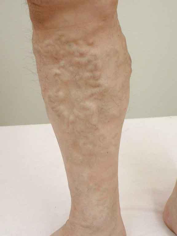 下肢静脈瘤の症状画像その3