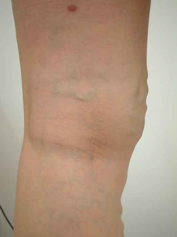 下肢静脈瘤の症状画像その4